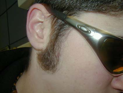 One of my sideburn.  Yeah it's sexy.