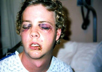 A bad skiing injury.....3 years ago.