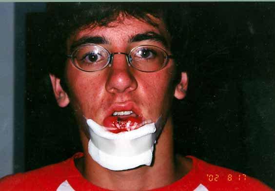 The ultimate fat lip dozen stitches