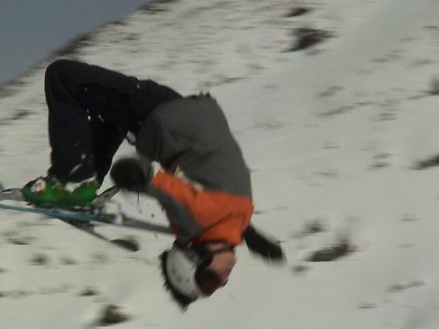 Backflip with left arm in plaster
