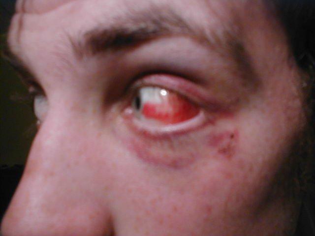 My latest eye injury.
