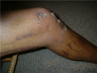 my knee injury