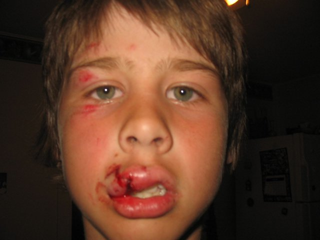got 3 stitches in my lip