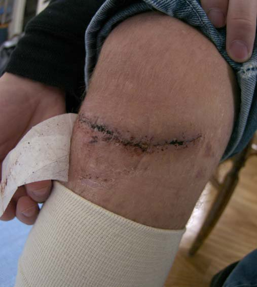 After i had my stitches removed! see the other two pics aswell, before and with stitches :)