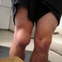 My awesome knee