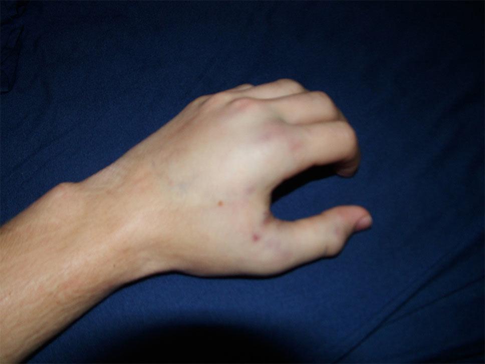 shattered thumb pt.0