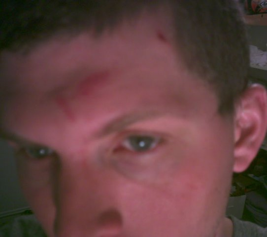 Head injuries from 540 attempt