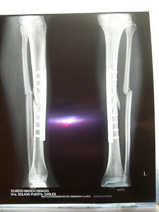 some broken bones...