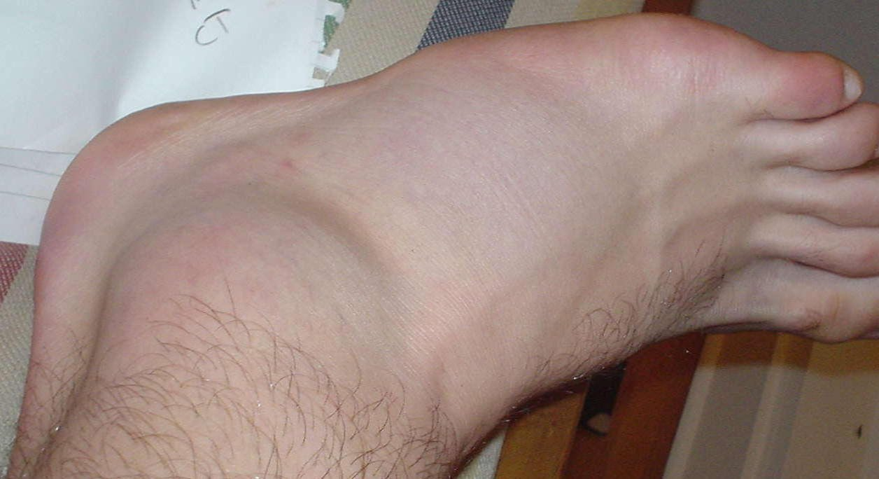 This is what happens when you roll your ankle