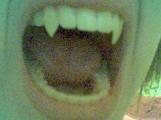 My teethSssS     FANGSssS..is this even in the right section?