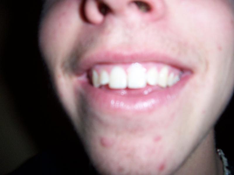 Friends makin fun of my teeth, see i dont care!