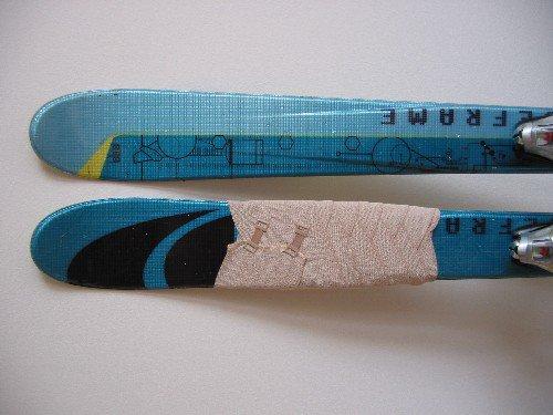 poor hurted skis