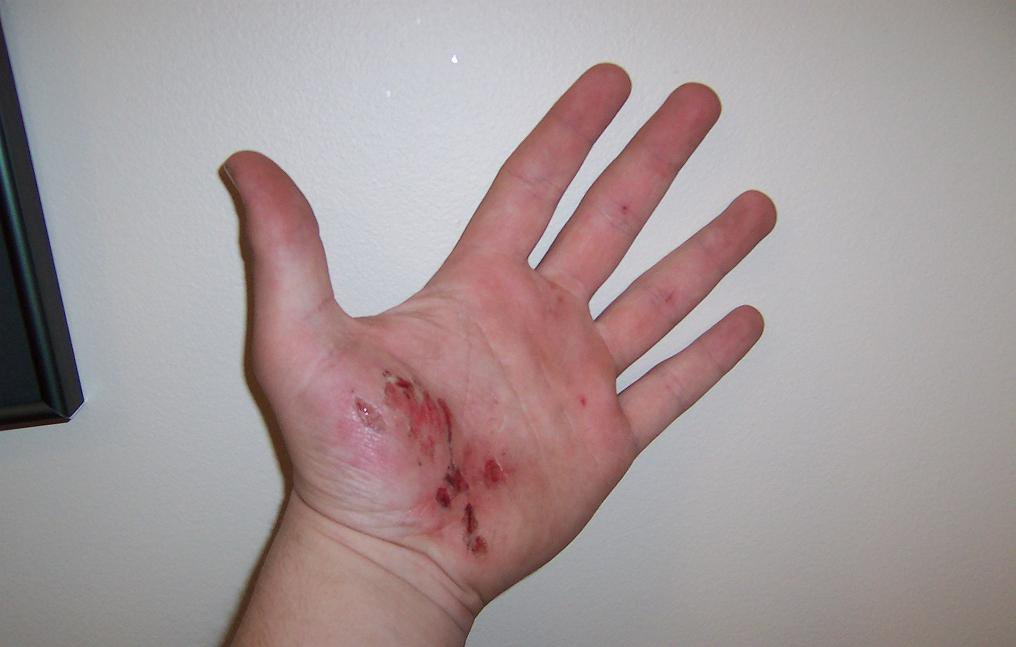hand after falling on longboard (don't look if u dont like gross things)