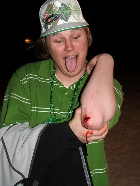 Cody Carter dont need no stitches