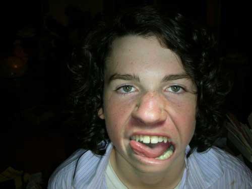 An ugly boy