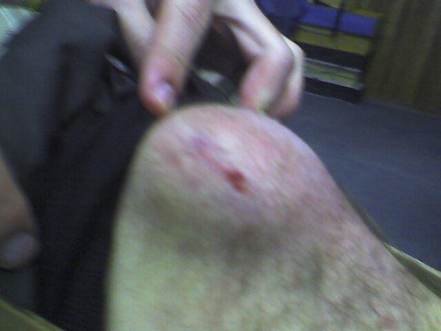 Got knee?