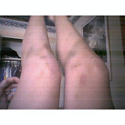 Bruises from the swollen show
