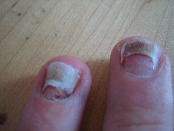 Finger nails falling off