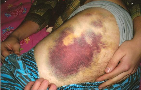 Hip bruise