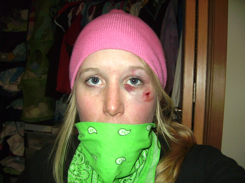 Sometimes skiing hurts
