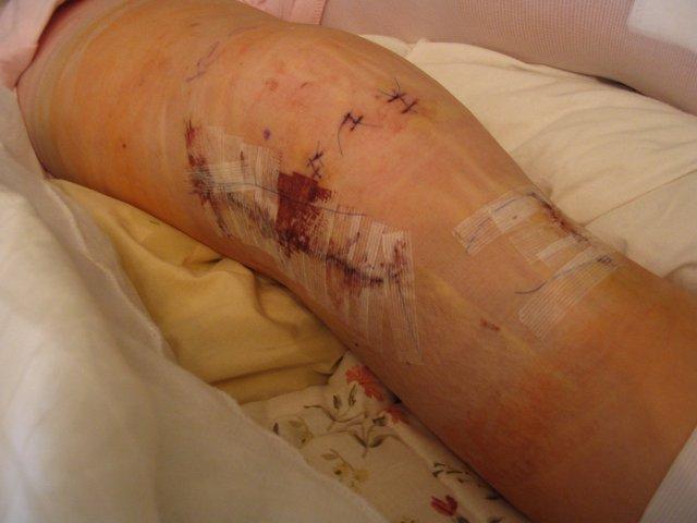 Stitches - 1 of 2