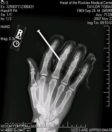 Hand vs nail gun