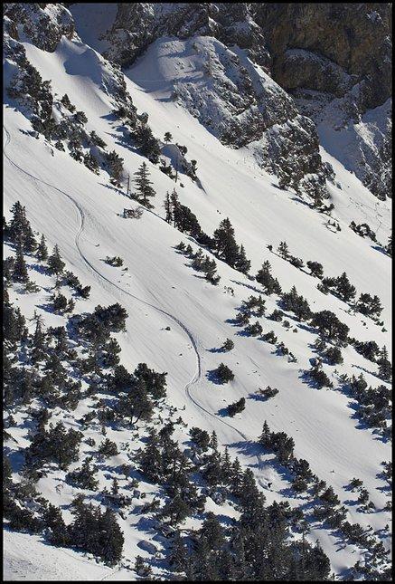 Skiing sucks... not