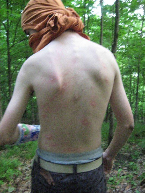 Vicious mosquitos