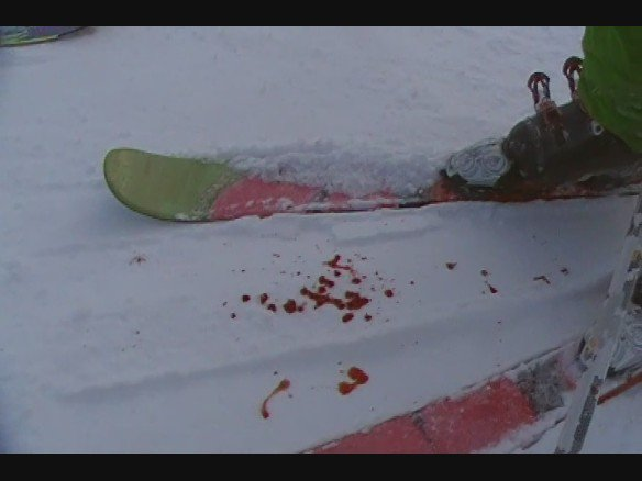 Another bloody pic