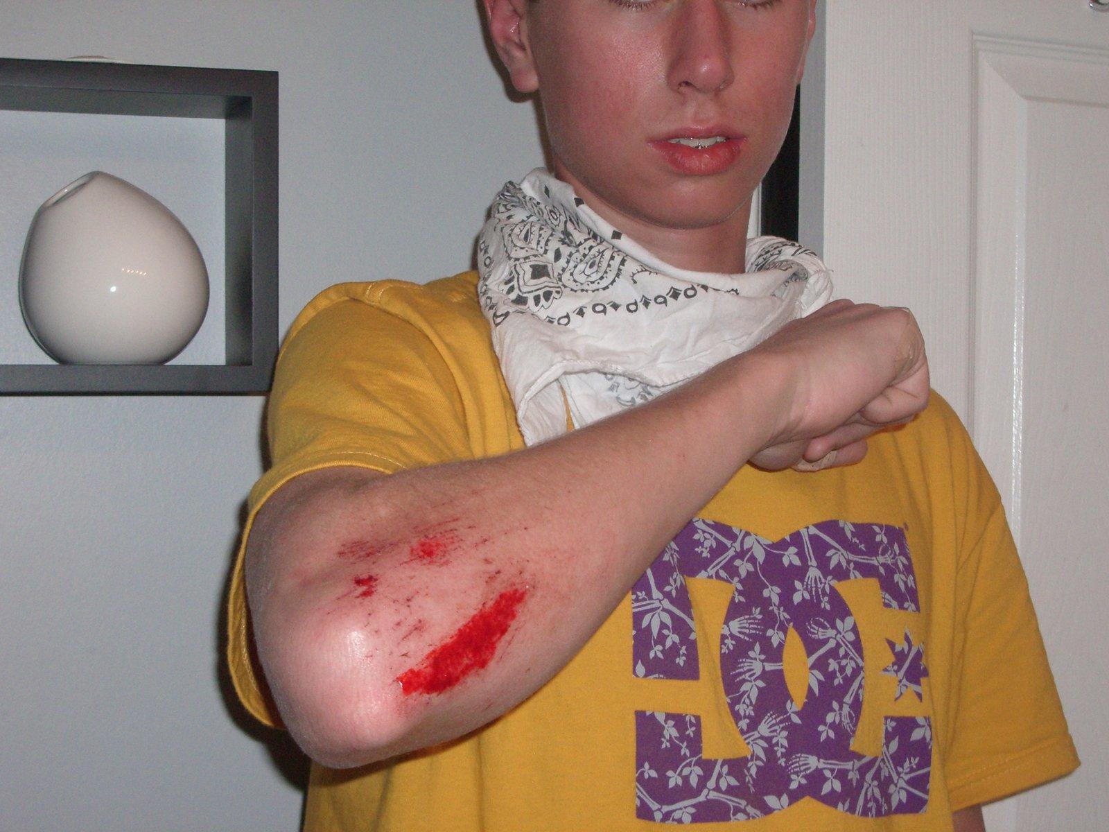 Cut/scrape