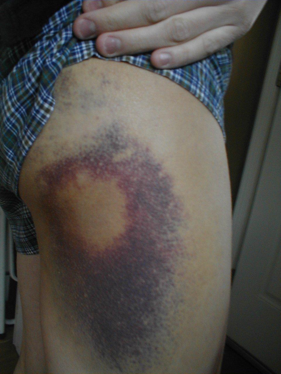 Secksy Leg Bruise 07-08