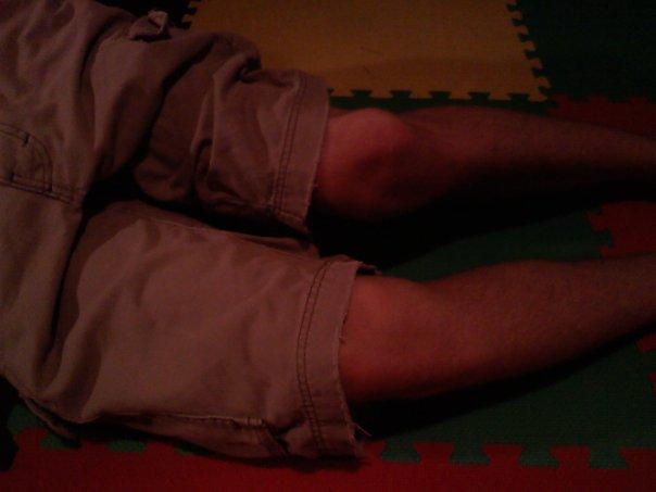 Alecs Knee