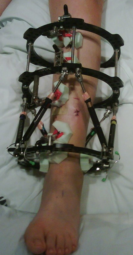 My broken leg