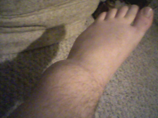 My fucked up ankle
