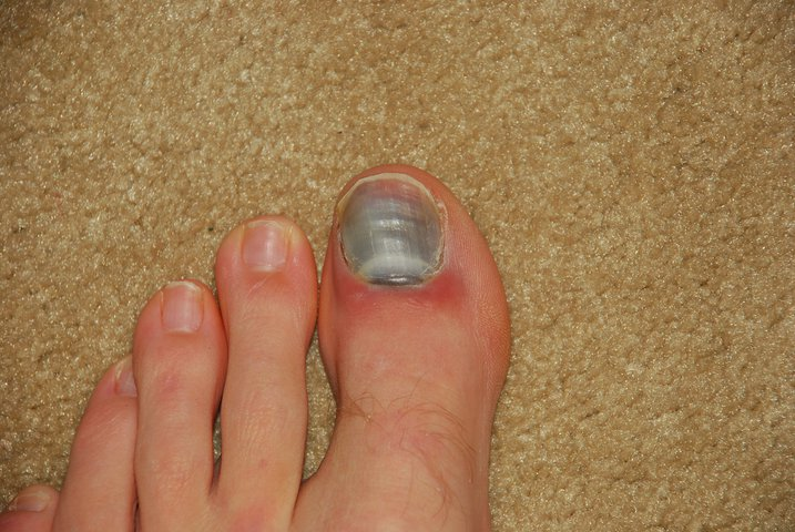 Toe about a week after it happened