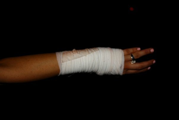 Stupid snowboarding injury