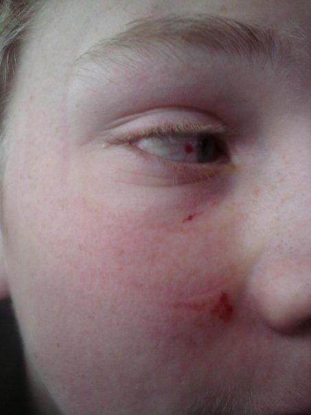 Popped Blood vessel