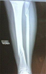 Broken Leg Xray
