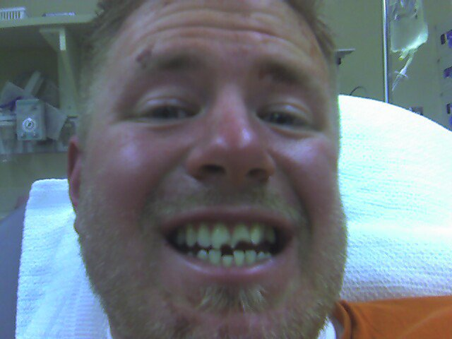Elbow wasn't the only thing, check the teeth