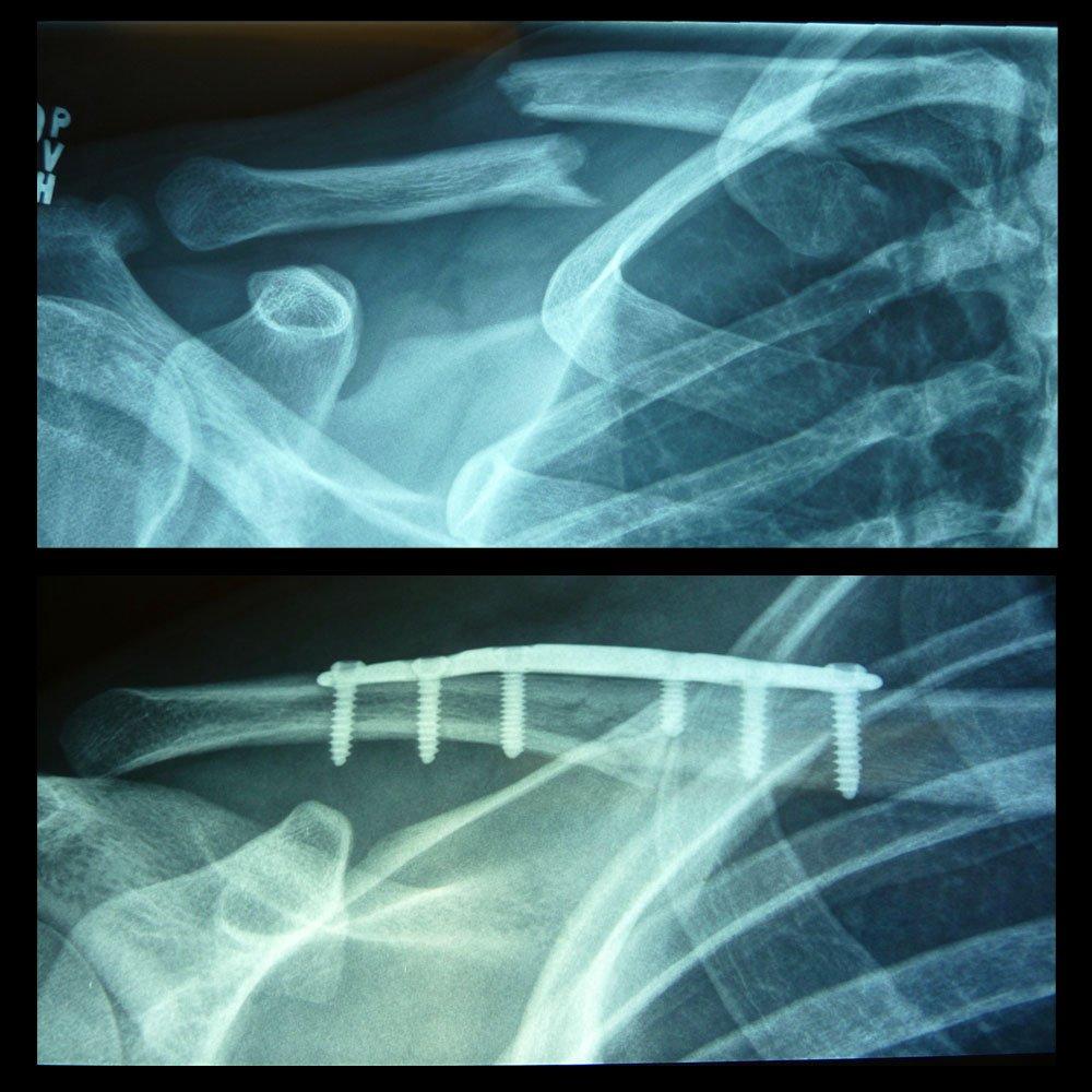 Brokencollarbone