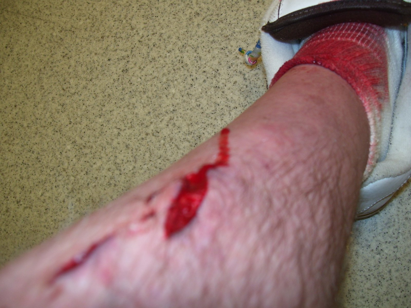 Starting to get gory