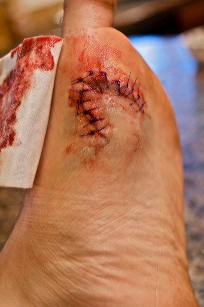 Cut my foot...