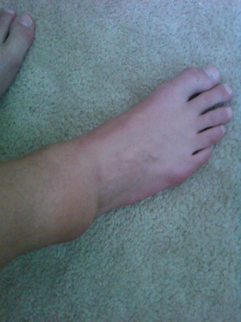 My ankle