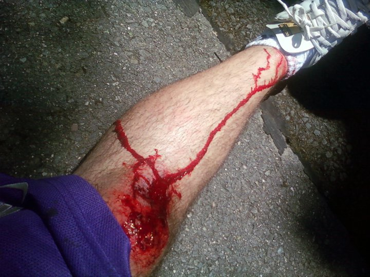 Longboarding crash