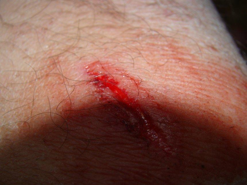 Cut myself on rail