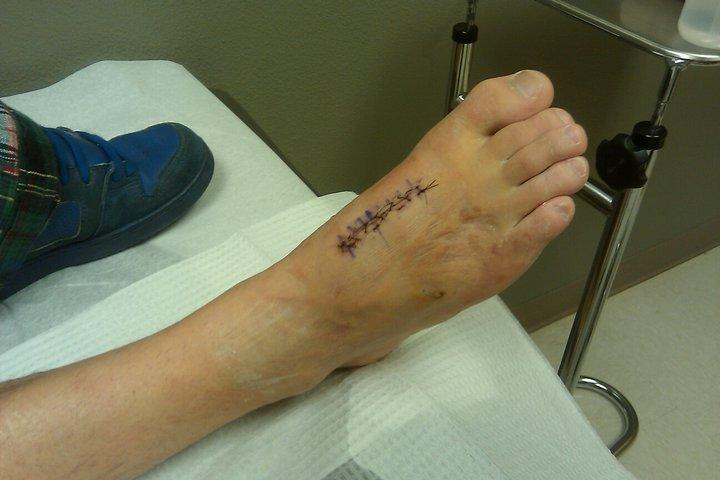 Outside of my broken foot