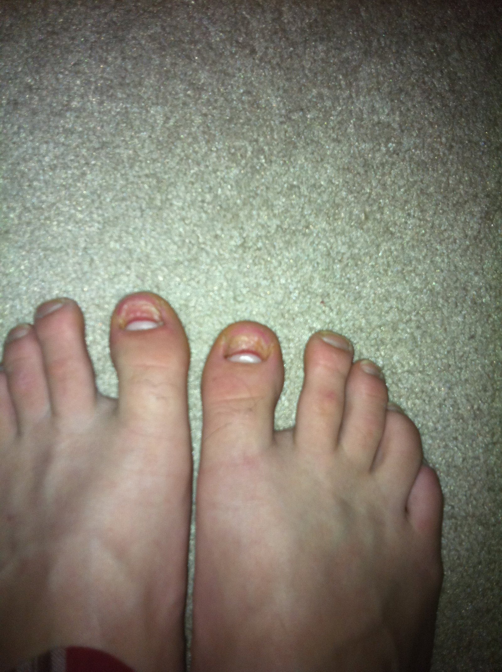Two toenails lost CLAIM