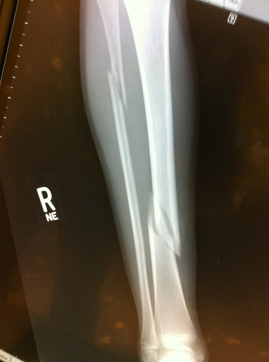 Broken tibia and you see one of the places i fractured my fibula
