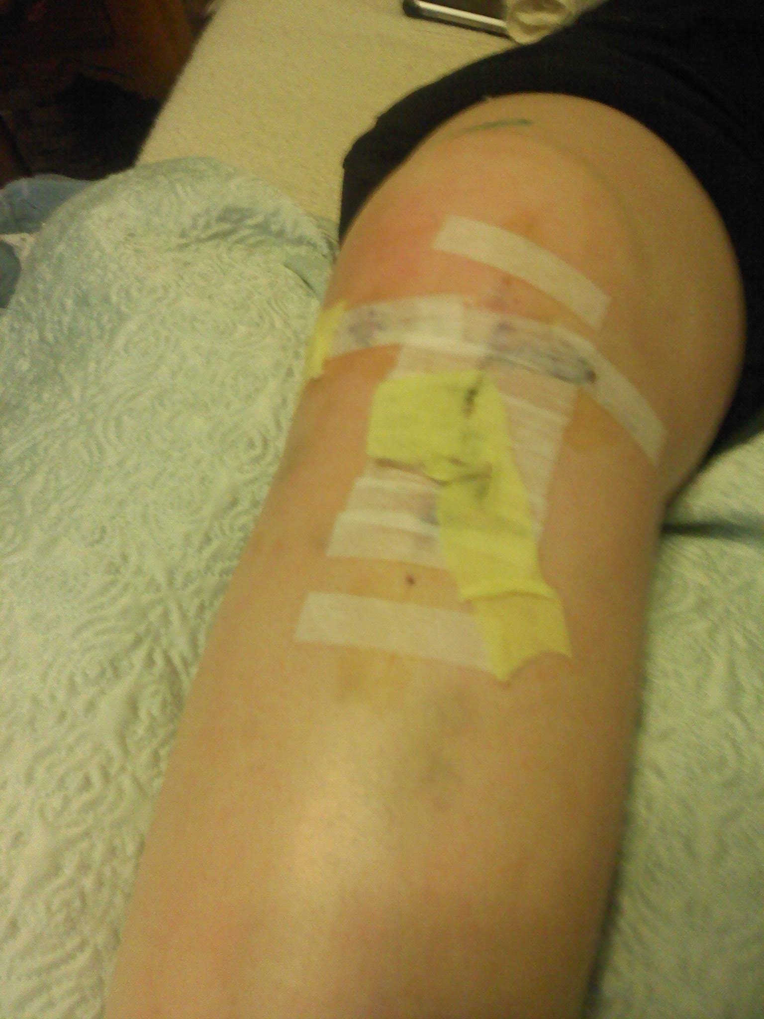 Acl and meniscus surgery