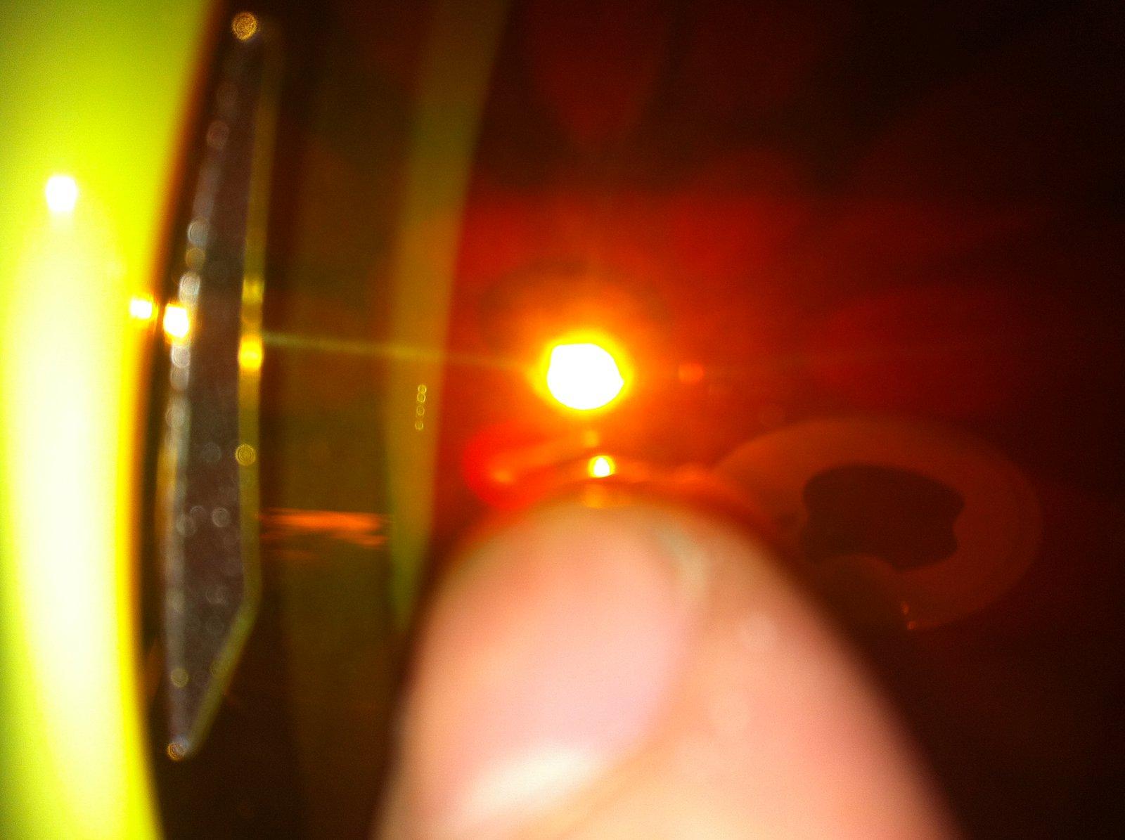 scratch on lense